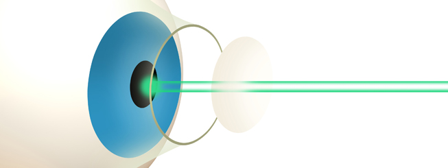 Laser eye surgery in Nottingham
